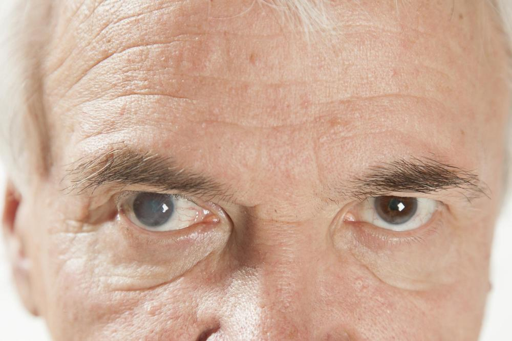 man with cataracts before seeking cataract treatment with an optometrist in Austin Optometirst